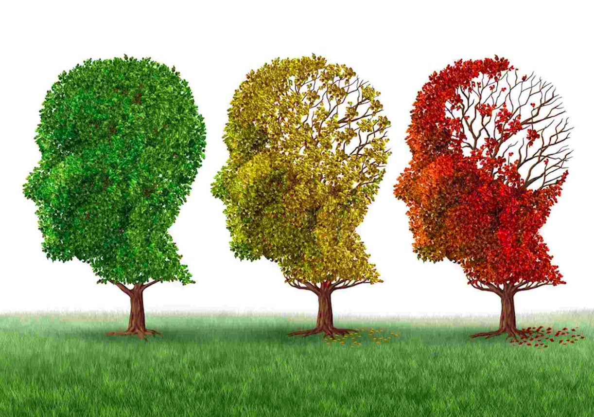 C60 may combat Alzheimer's disease